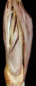 Cadaver Lab - Quadriceps