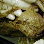 Cadaver Lab - Bicep Tendon