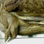 Cadaver Lab - Shoulder
